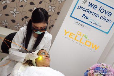 dual yellow เลเซอร์หน้าใส @ Proderma Clinic