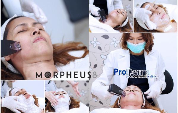 รีวิว Morpheus 8 ยกกระชับผิว