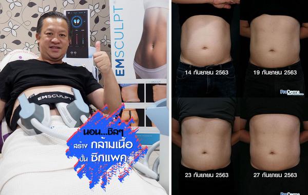 EMsculpt นอนชิลๆ สร้างกล้ามเนื้อ ปั้นซิกแพค